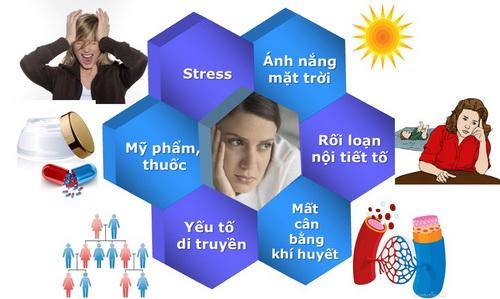 boc-7-nguyen-nhan-gay-nam-da-mat-va-cach-khac-phuc. 2