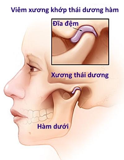 bi-viem-khop-thai-duong-ham-co-chua-duoc-khong. 2