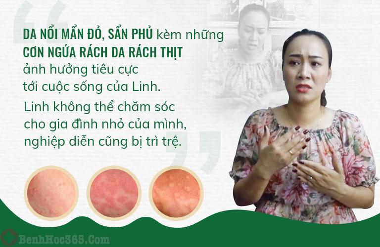 Chị Linh bị ám ảnh mỗi lần nhớ lại triệu chứng của mề đay gây ra