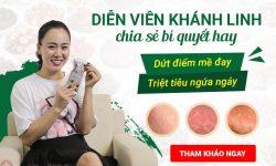 Diễn viên Về nhà đi con Phùng Khánh Linh trải lòng hành trình dứt điểm mề đay mẩn ngứa bằng bài thuốc thảo dược
