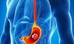 Ung thư dạ dày là bệnh về tiêu hóa phổ biến có nhiều người mắc ở Việt Nam