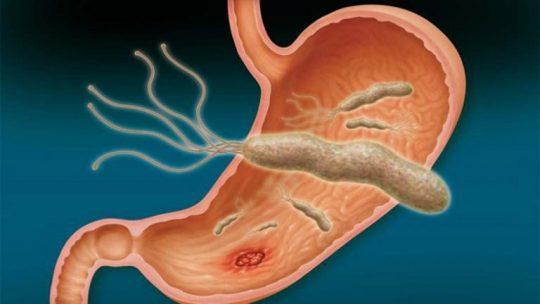 Vi khuẩn HP là gì và lây nhiễm qua con đường nào?