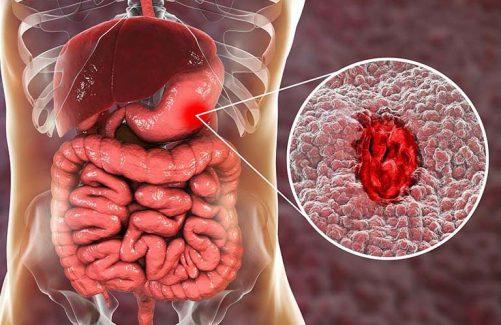 Các triệu chứng thường gặp của viêm dạ dày bệnh học