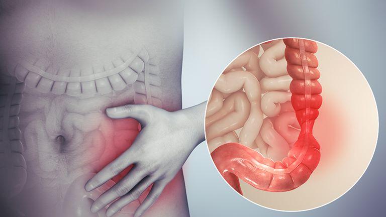 Bệnh viêm đại tràng nếu để tiến triển lâu ngày có thể gây thủng và ung thư đại tràng