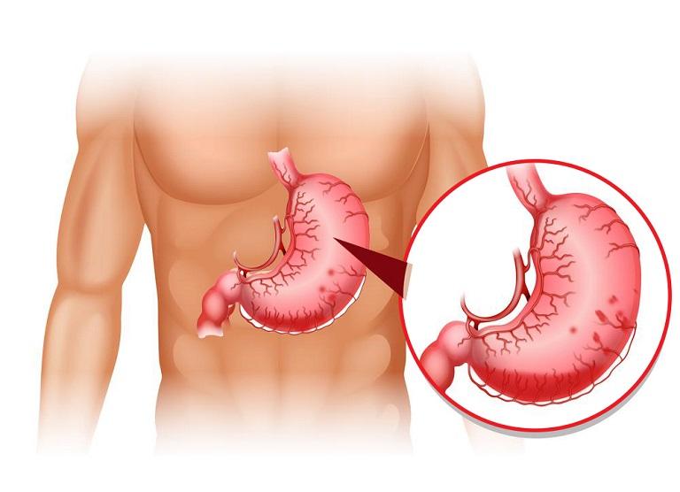 Đau dạ dày trong đêm có thể gây xuất huyết tiêu hóa nếu không được điều trị kịp thời