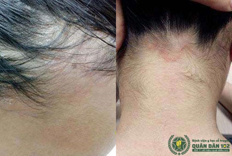 Sau 2 năm, tình trạng bệnh lan xuống vùng trán và sau gáy, gây mất thẩm mỹ