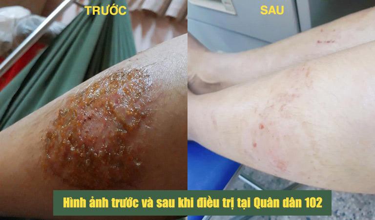 Hình ảnh vùng da bị tổn thương của chị Ngọc trước và sau khi điều trị tại Quân dân 102